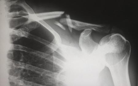 a range of treatments for osteoarthritis